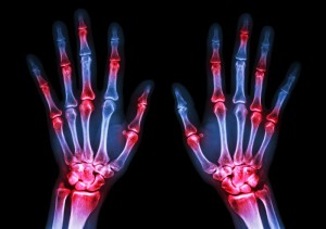 arthritis-hands